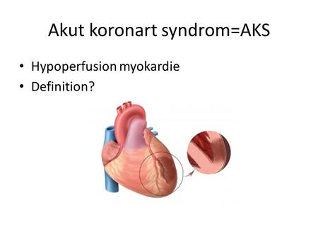 Akut koronart syndrom=AKS Hypoperfusion myokardie Definition?