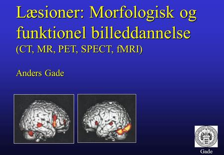 Gade Læsioner: Morfologisk og funktionel billeddannelse (CT, MR, PET, SPECT, fMRI) Anders Gade.