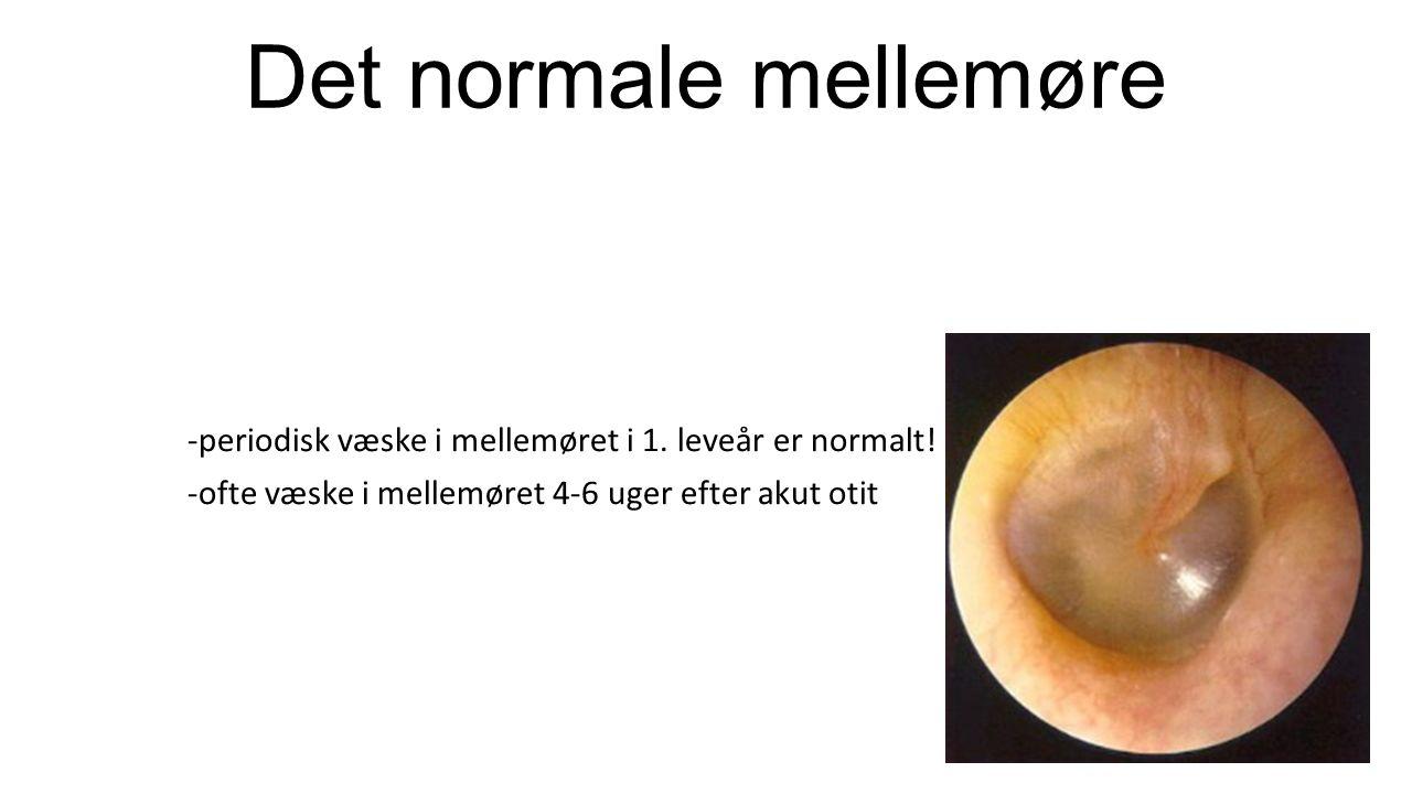 Det normale mellemøre -periodisk væske i mellemøret i 1.