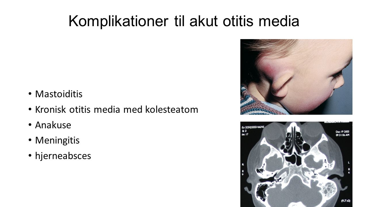 Komplikationer til akut otitis media