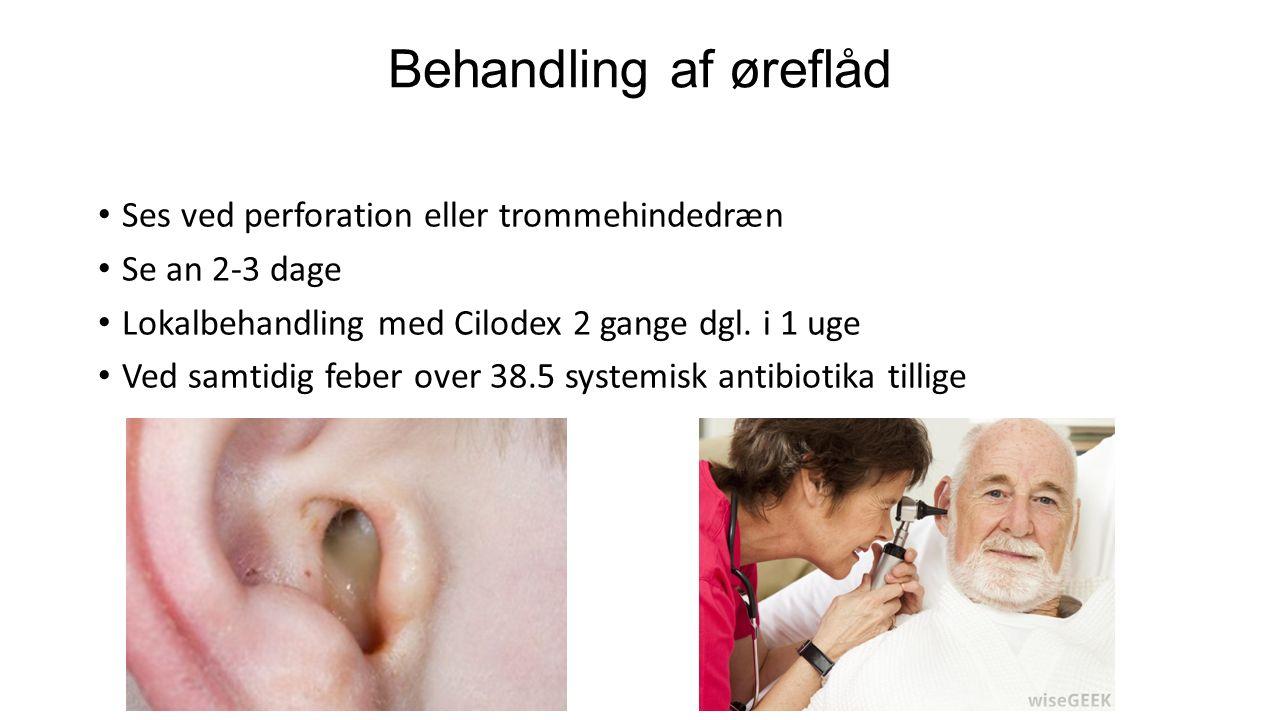 Behandling af øreflåd Ses ved perforation eller trommehindedræn