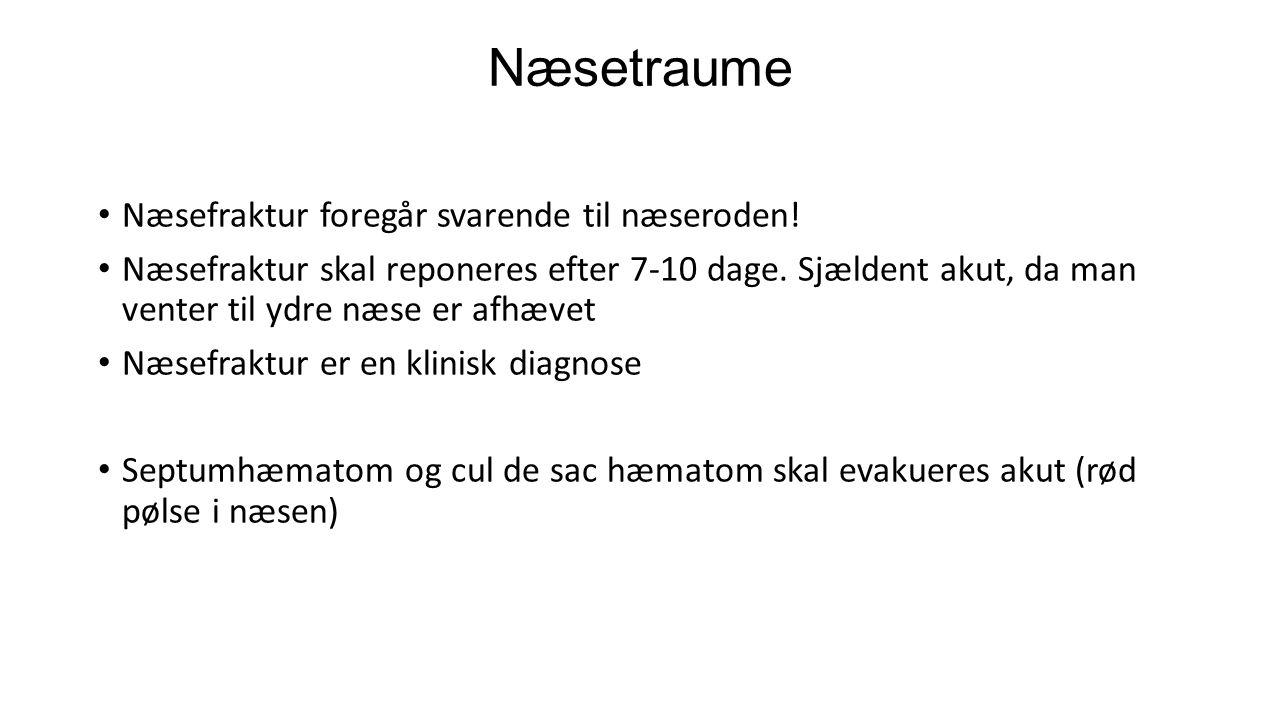 Næsetraume Næsefraktur foregår svarende til næseroden!
