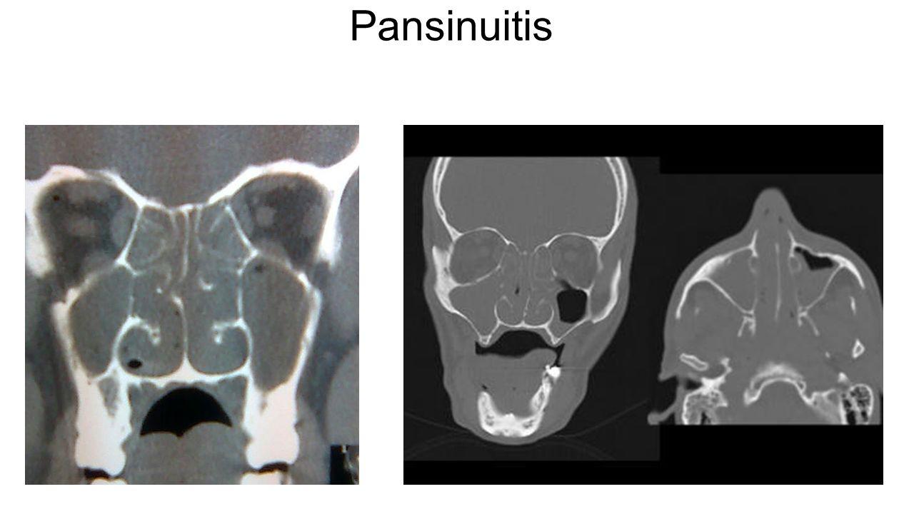 Pansinuitis