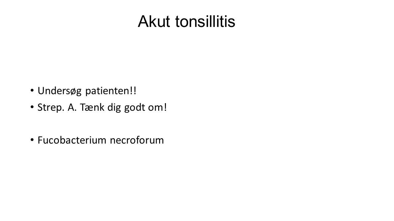 Akut tonsillitis Undersøg patienten!! Strep. A. Tænk dig godt om!