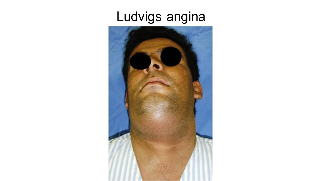Ludvigs angina