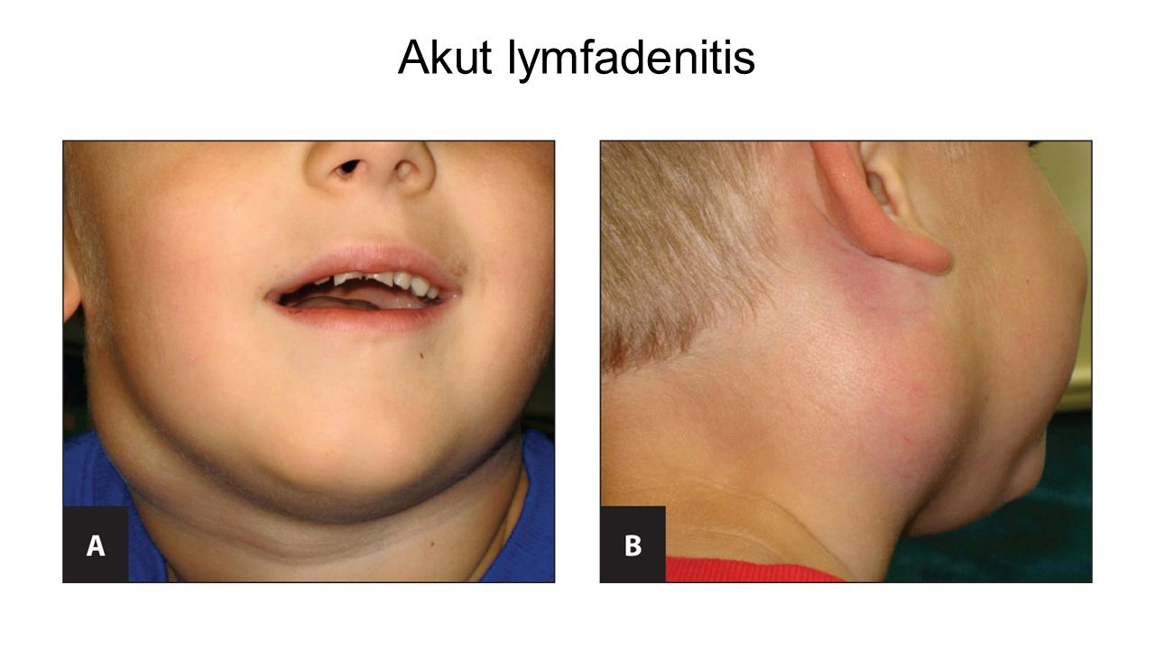 Akut lymfadenitis