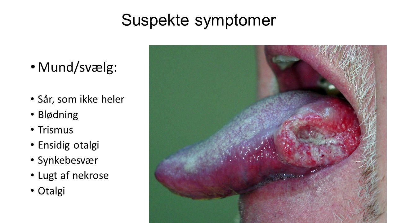 Suspekte symptomer Mund/svælg: Sår, som ikke heler Blødning Trismus