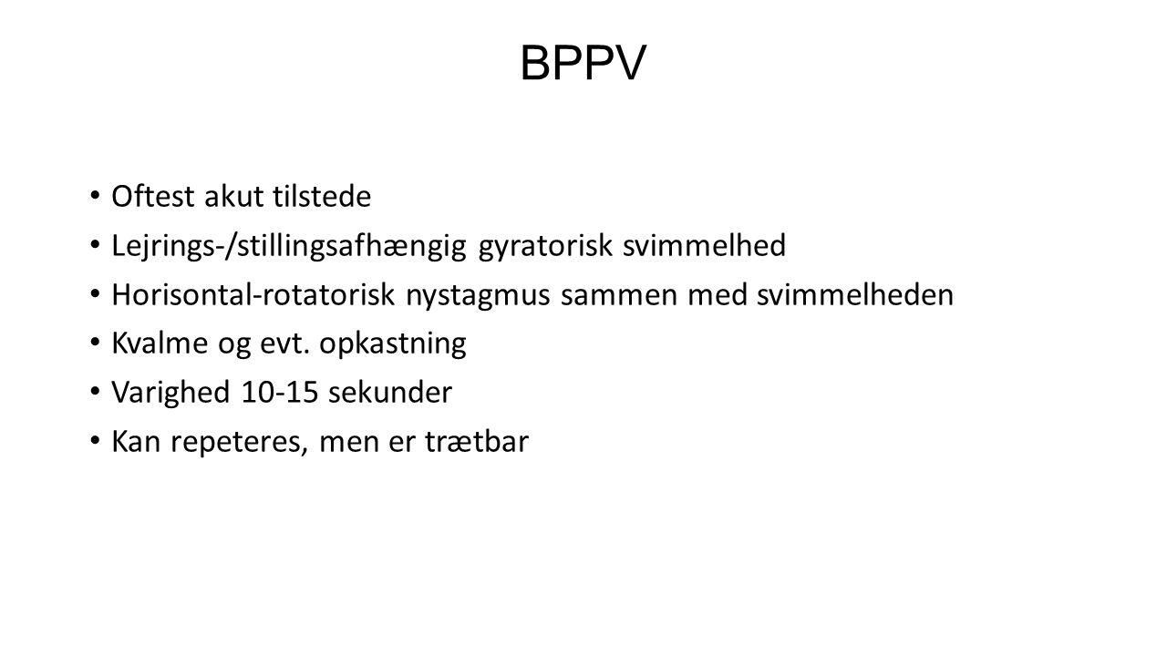 BPPV Oftest akut tilstede