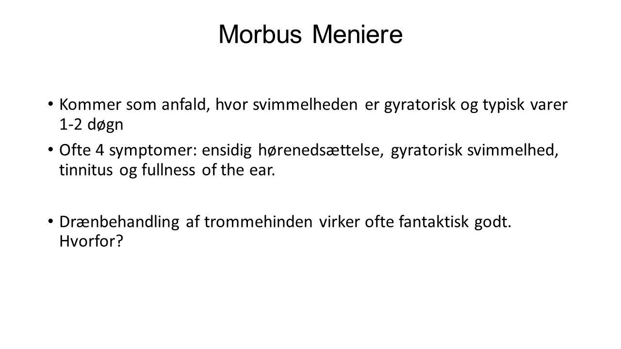 Morbus Meniere Kommer som anfald, hvor svimmelheden er gyratorisk og typisk varer 1-2 døgn.
