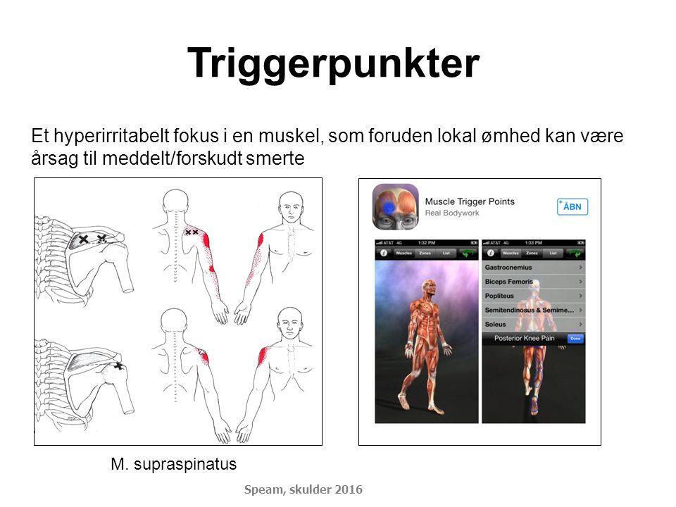 Triggerpunkter Et hyperirritabelt fokus i en muskel, som foruden lokal ømhed kan være årsag til meddelt/forskudt smerte.