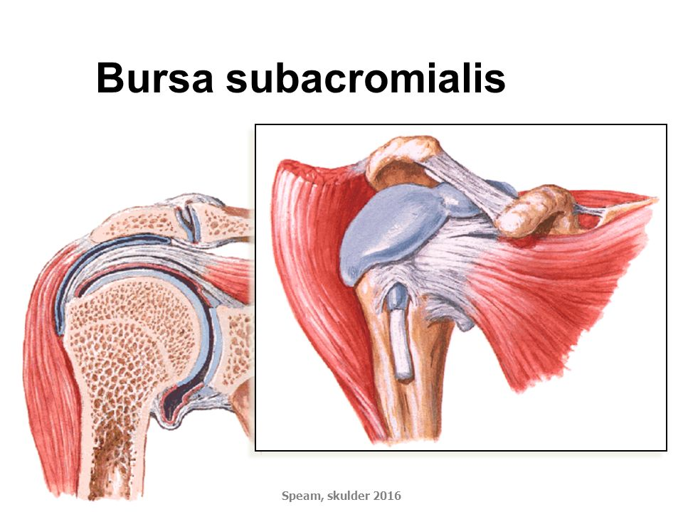Bursa subacromialis Speam, skulder 2016