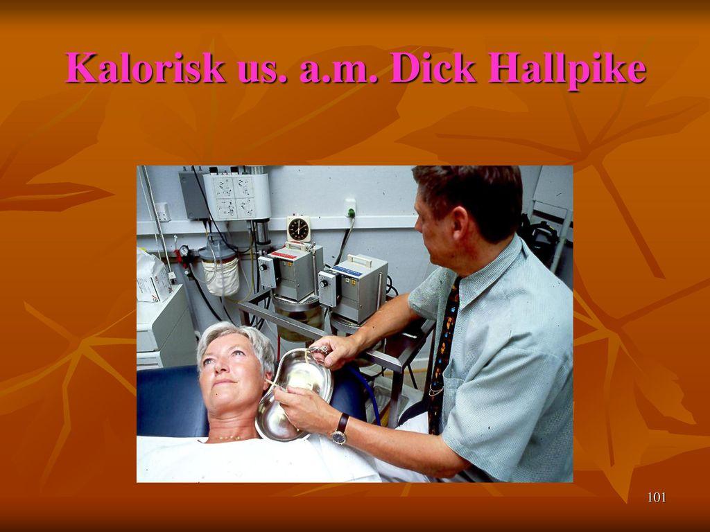 Kalorisk us. a.m. Dick Hallpike