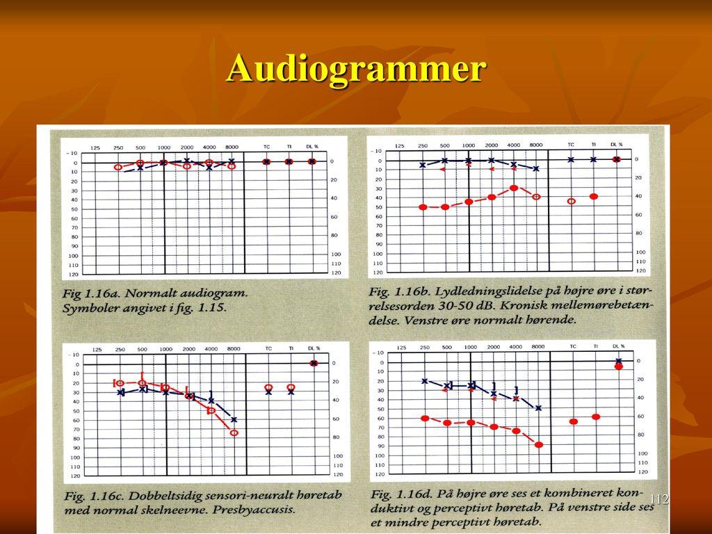 Audiogrammer