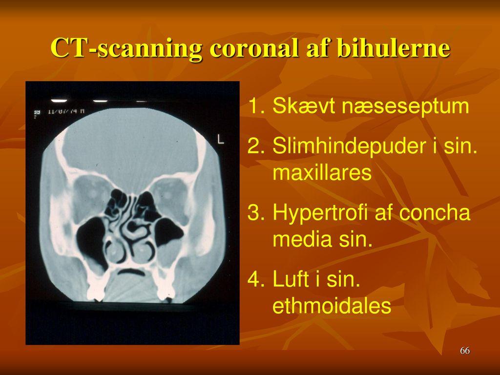 CT-scanning coronal af bihulerne