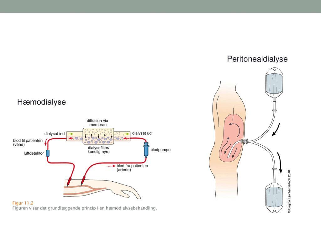 Peritonealdialyse Hæmodialyse