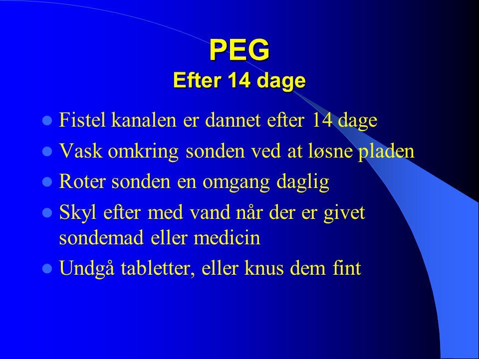PEG Efter 14 dage Fistel kanalen er dannet efter 14 dage