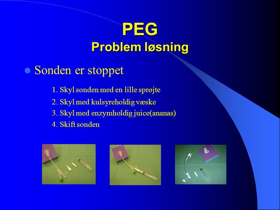 PEG Problem løsning Sonden er stoppet