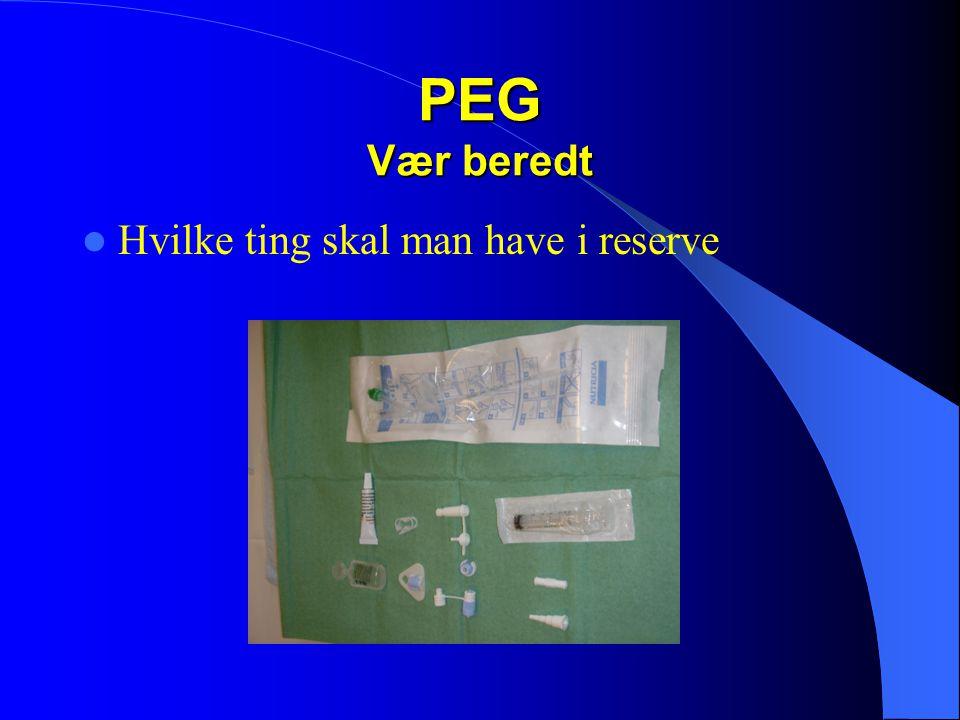 PEG Vær beredt Hvilke ting skal man have i reserve