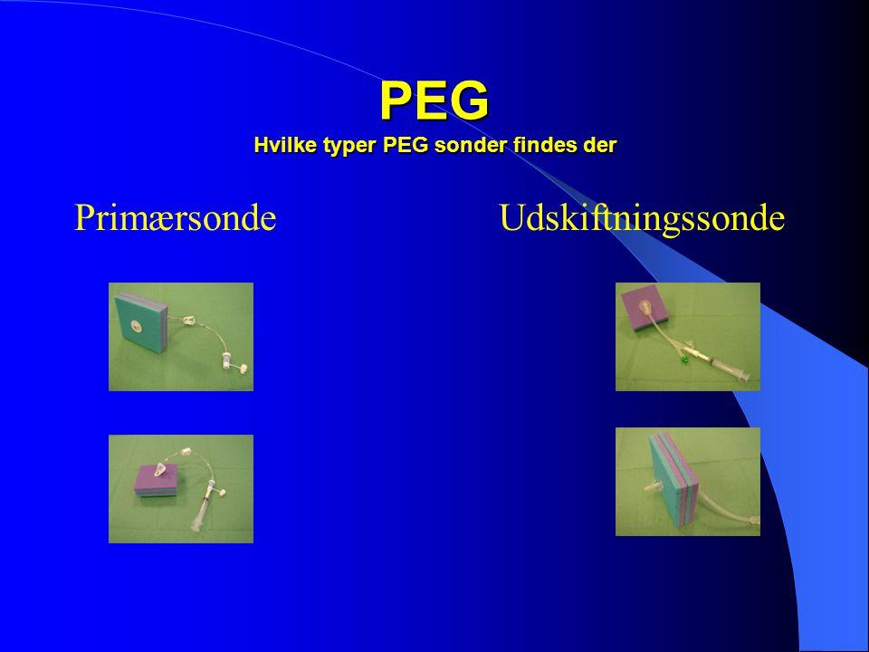 PEG Hvilke typer PEG sonder findes der