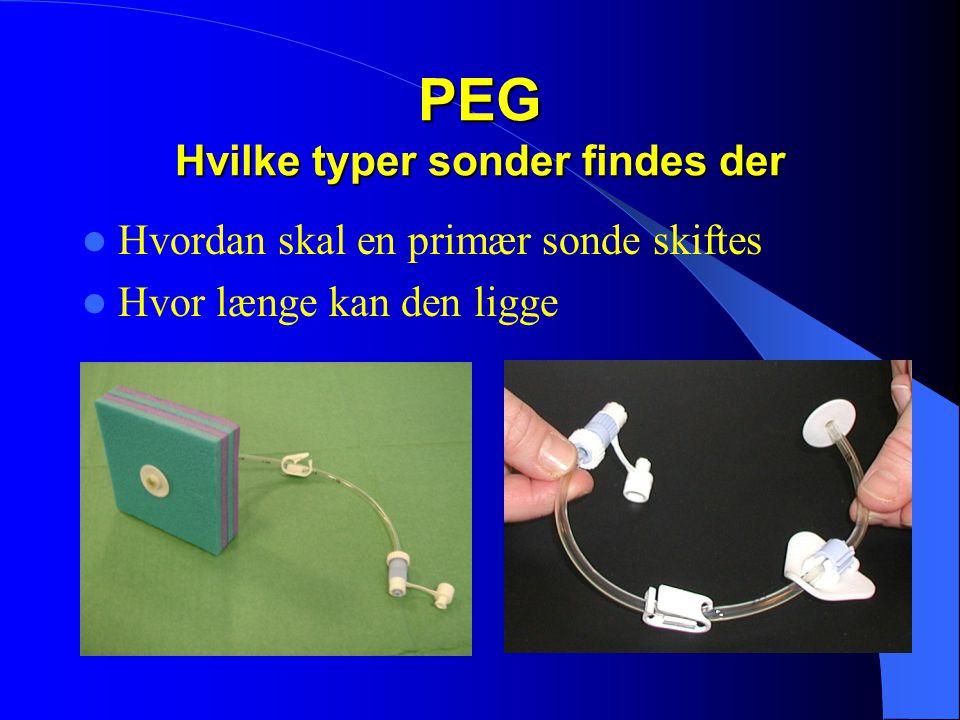 PEG Hvilke typer sonder findes der