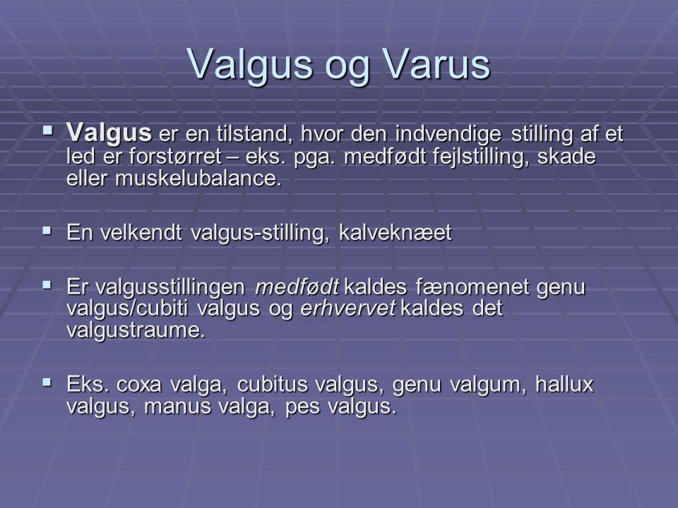 Valgus og Varus