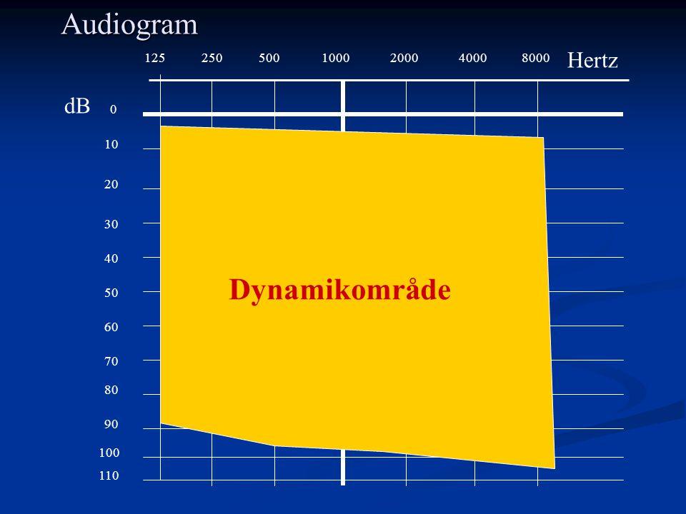 Audiogram Dynamikområde Hertz dB 125 250 500 1000 2000 4000 8000 10 20