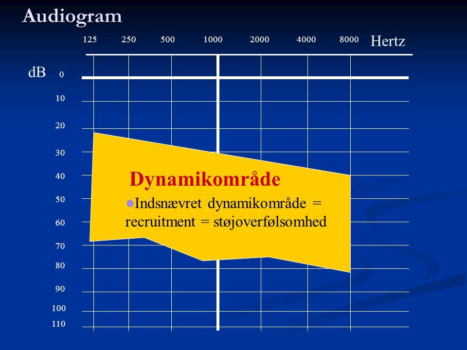 Audiogram Dynamikområde Hertz dB
