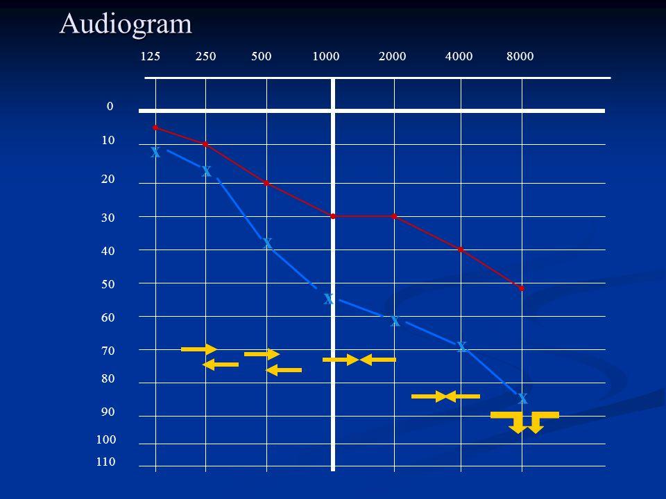 Audiogram 125 250 500 1000 2000 4000 8000 10 x x 20 30 x 40 50 x x 60 x 70 80 x 90 100 110