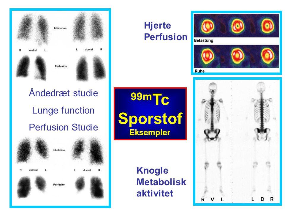99mTc Sporstof Hjerte Perfusion Åndedræt studie Lunge function