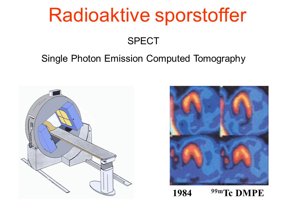 Radioaktive sporstoffer