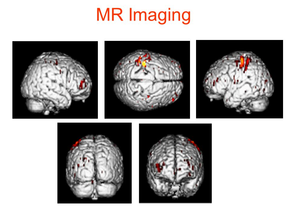 MR Imaging