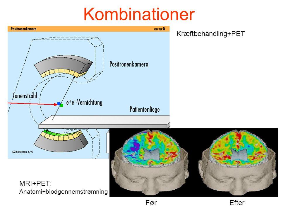 Kombinationer Kræftbehandling+PET MRI+PET: Før Efter