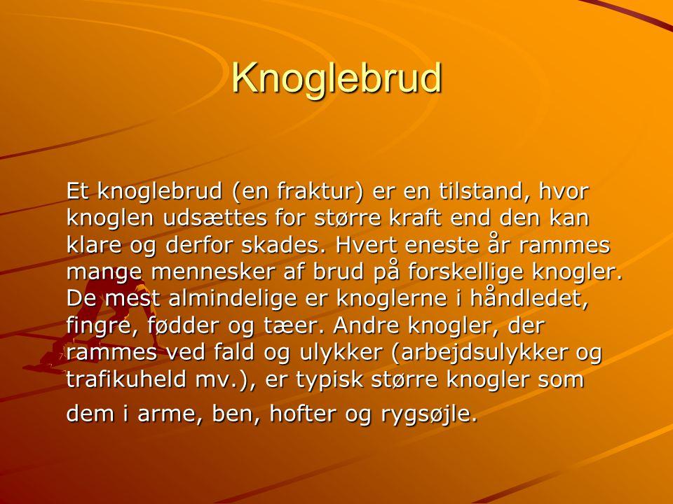 Knoglebrud