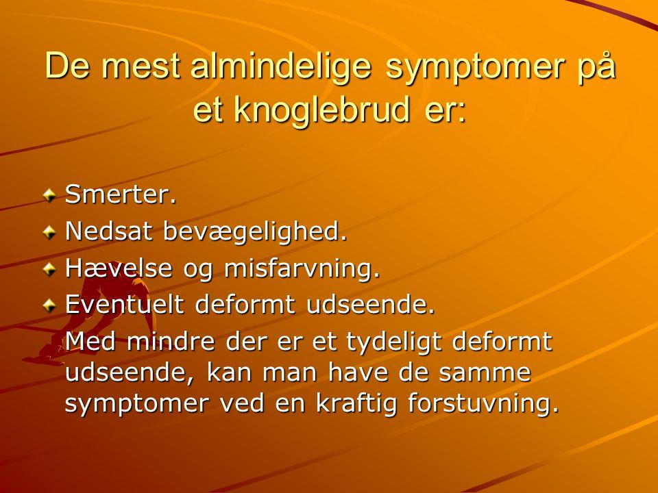 De mest almindelige symptomer på et knoglebrud er: