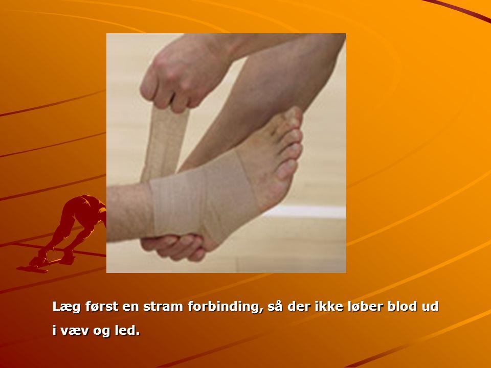 Læg først en stram forbinding, så der ikke løber blod ud i væv og led.