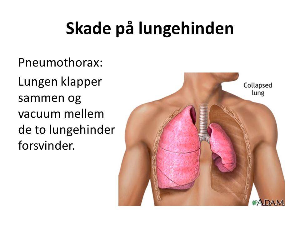 Skade på lungehinden Pneumothorax: Lungen klapper sammen og vacuum mellem de to lungehinder forsvinder.