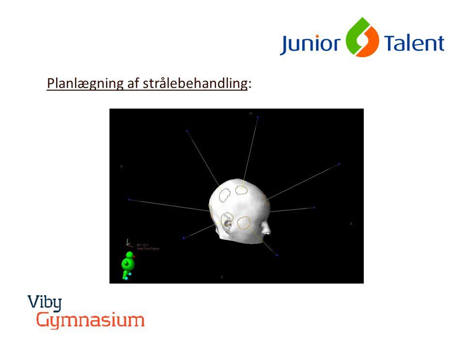 Planlægning af strålebehandling: