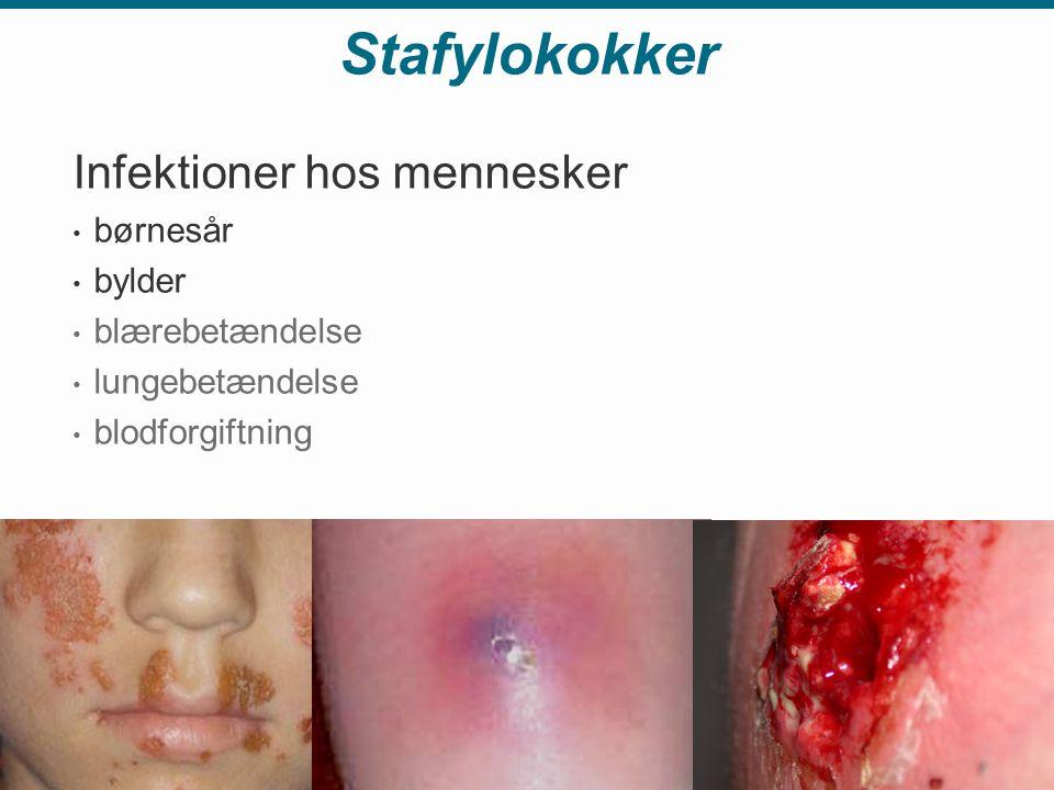 Stafylokokker Infektioner hos mennesker børnesår bylder