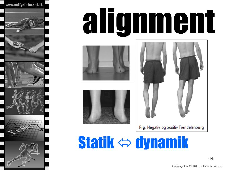 alignment Statik  dynamik