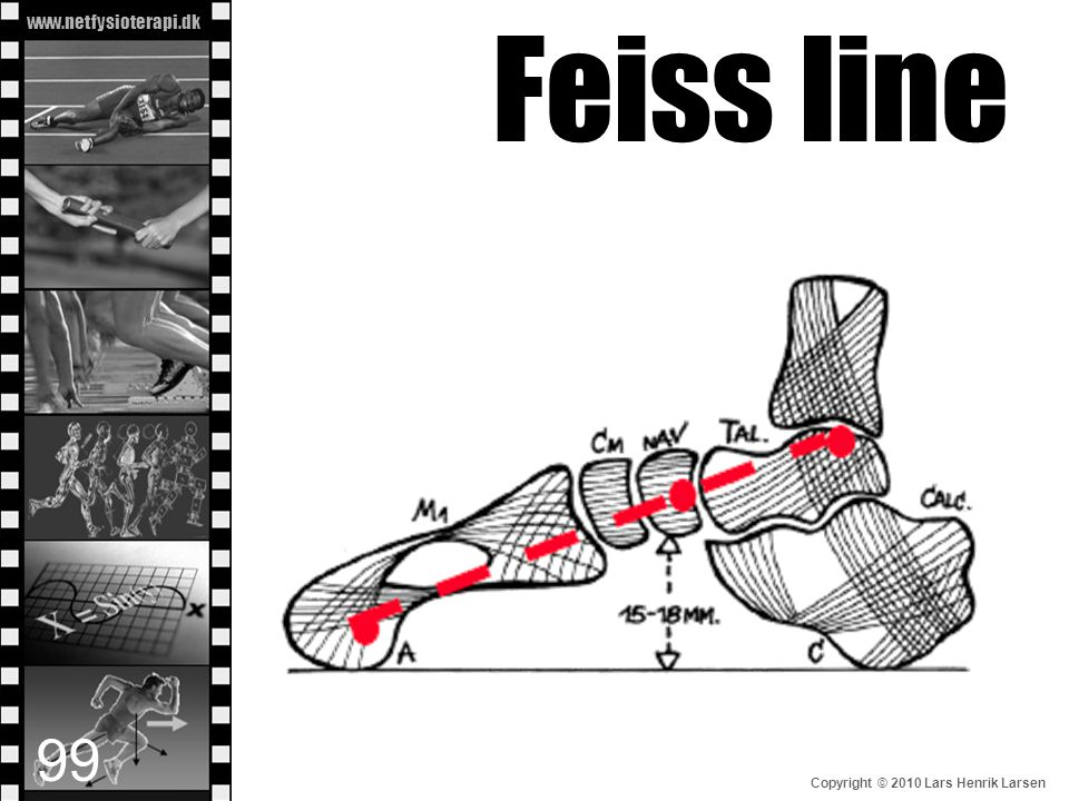 Feiss line