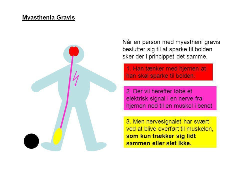 Myasthenia Gravis Når en person med myastheni gravis beslutter sig til at sparke til bolden sker der i princippet det samme.