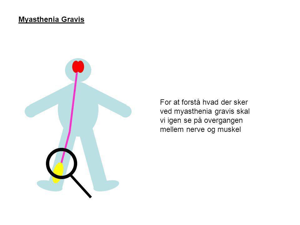 Myasthenia Gravis For at forstå hvad der sker ved myasthenia gravis skal vi igen se på overgangen mellem nerve og muskel.