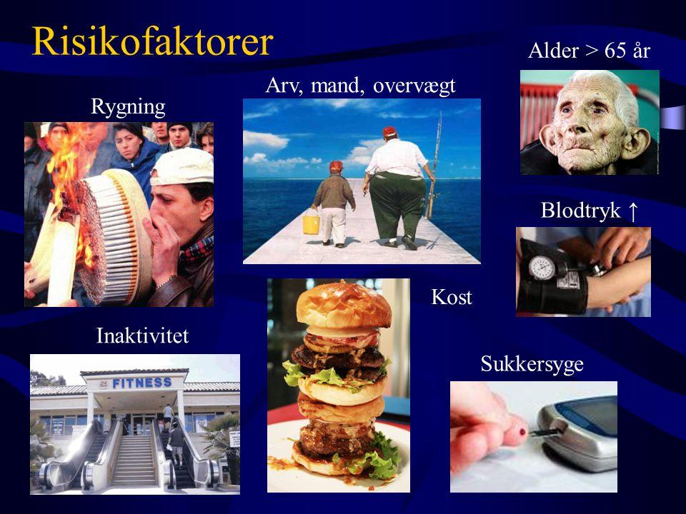 Risikofaktorer Alder > 65 år Arv, mand, overvægt Rygning Blodtryk ↑