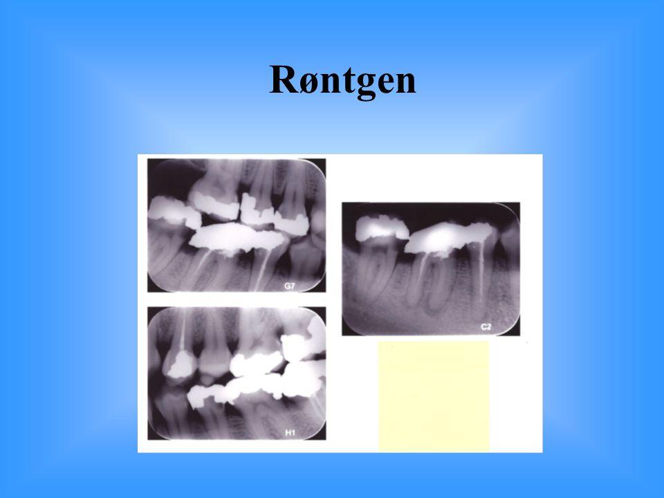 Røntgen 46