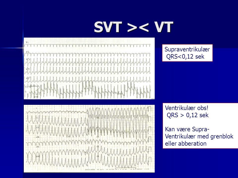 SVT >< VT Supraventrikulær QRS<0,12 sek Ventrikulær obs!