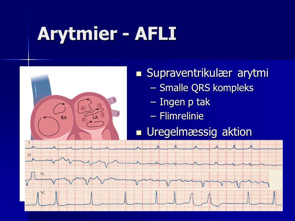 Arytmier - AFLI Supraventrikulær arytmi Uregelmæssig aktion