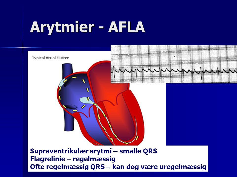 Arytmier - AFLA Supraventrikulær arytmi – smalle QRS