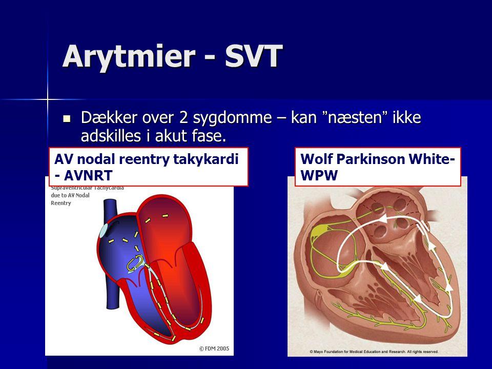 Arytmier - SVT Dækker over 2 sygdomme – kan næsten ikke adskilles i akut fase. AV nodal reentry takykardi.