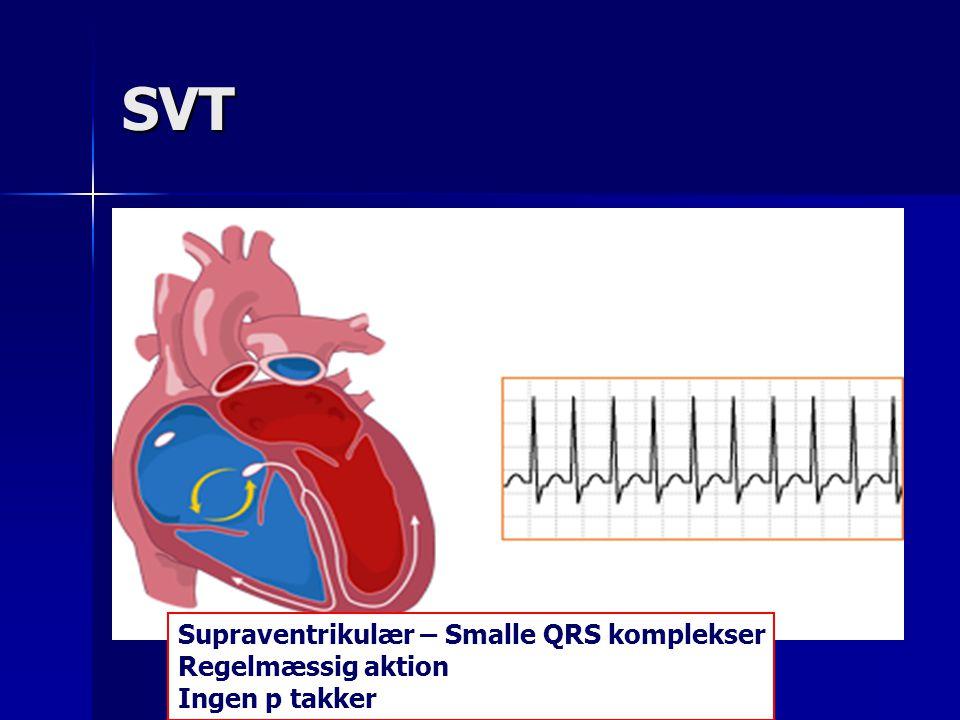 SVT Supraventrikulær – Smalle QRS komplekser Regelmæssig aktion