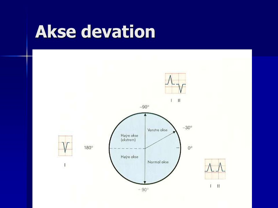 Akse devation
